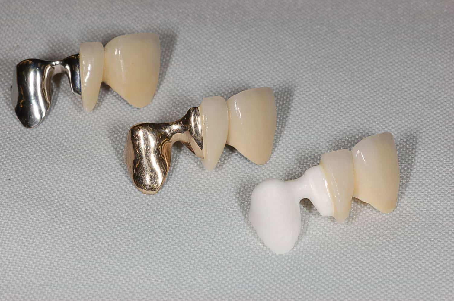 на фотографии три мостовидных протеза замещающих группу зубов: два из них с металлическим каркасом, а третий (с каркасом белого цвета) сделан из диоксида циркония. Все протезы облицованы керамикой.