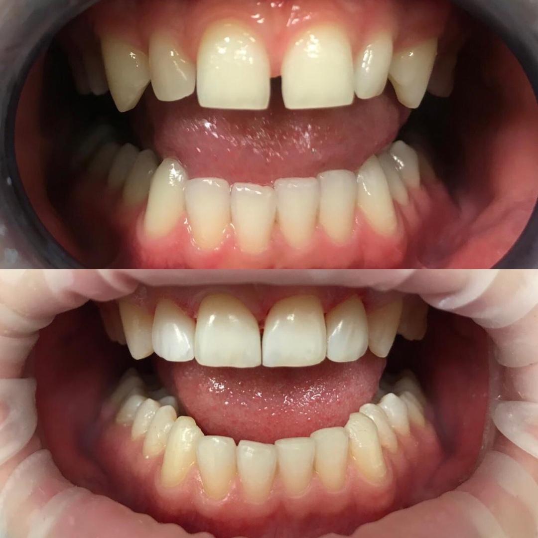 *Закрытие диастемы (расстояния между передними зубами 11 и 21) и корректировка формы 12 и 22 зубов.*
