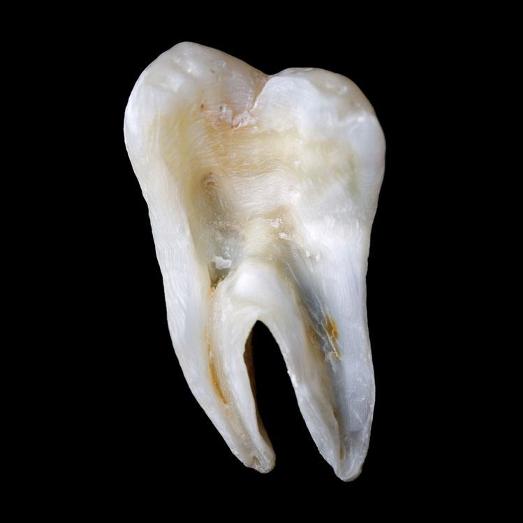 так выглядит срез настоящего зуба