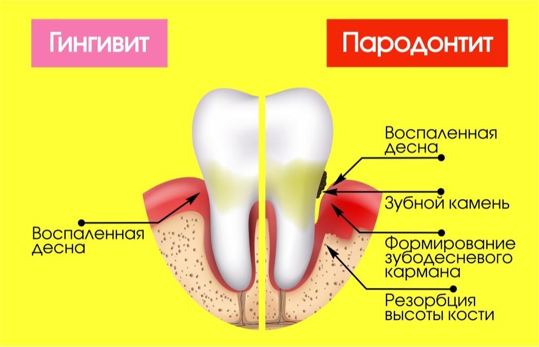 гингивит и пародонтит – воспалительные заболевания десен и тканей пародонта