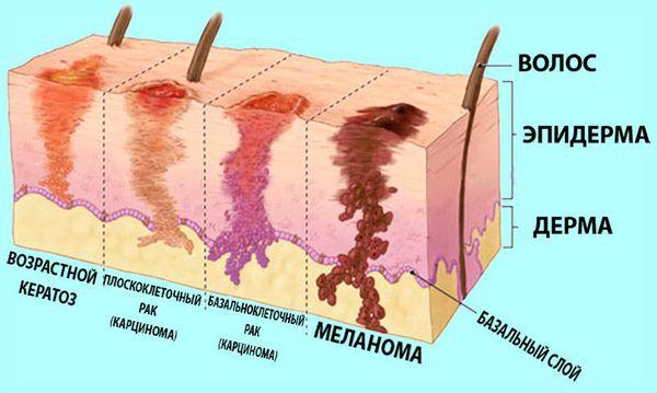 Базалиома (базальноклеточный рак) – это злокачественное образование из базального слоя эпителия кожи